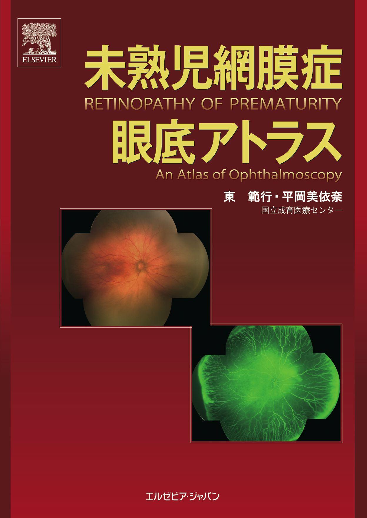 眼科 > 斜視弱視・小児疾患・ロービジョン - 未熟児網膜症 眼底