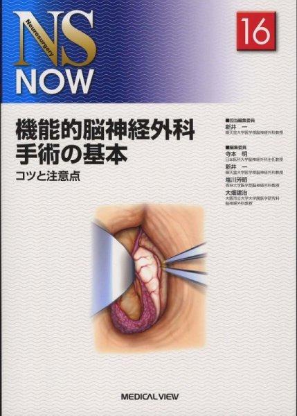 画像1: 機能的脳神経外科手術の基本 コツと注意点《NS NOW 16》 (1)