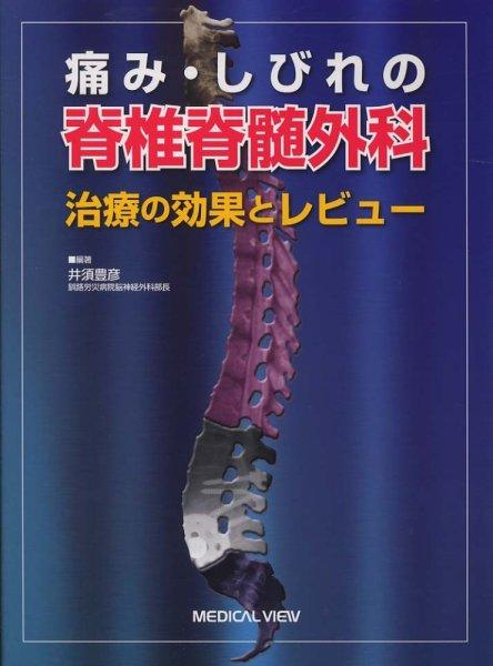 画像1: 痛み・しびれの脊椎脊髄外科 治療の効果とレビュー (1)