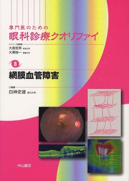画像1: 網膜血管障害 [専門医のための眼科診療クオリファイ 8] (1)