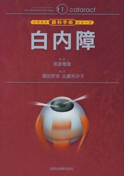 画像1: 白内障 [イラスト眼科手術シリーズ I) (1)