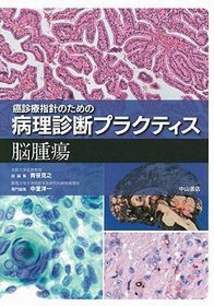 画像1: 脳腫瘍 (癌診療指針のための病理診断プラクティス ) (1)