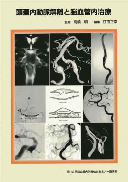 画像1: 頭蓋内動脈解離と脳血管内治療《第12回脳血管内治療仙台セミナー講演集》 (1)
