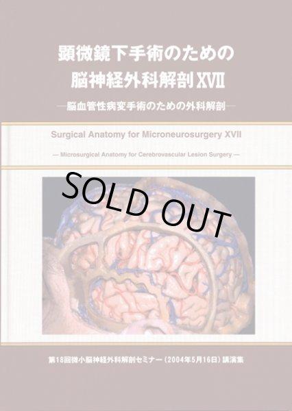 画像1: 顕微鏡下手術のための脳神経外科解剖 XVII 脳血管性病変手術のための外科解剖 (1)