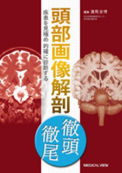 画像1: 頭部画像解剖 徹頭徹尾 疾患を見極め的確に診断する (1)