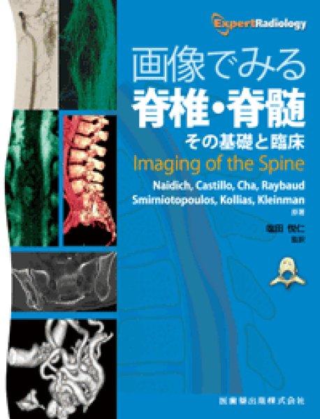 画像1: 画像でみる脊椎・脊髄  その基礎と臨床 (1)