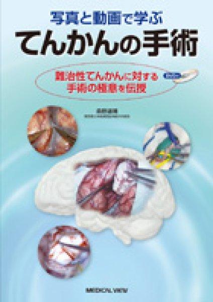 画像1: てんかんの手術 難治性てんかんに対する手術の極意を伝授 (1)