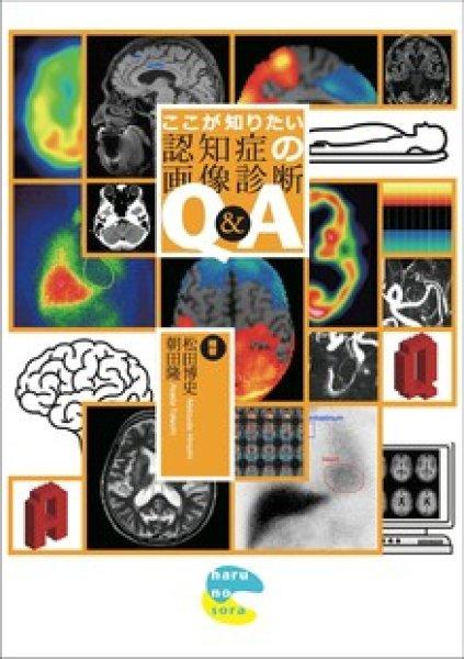 画像1: ここが知りたい認知症の画像診断Q&A (1)