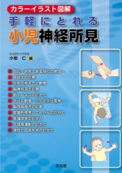 画像1: カラーイラスト図解 手軽にとれる小児神経所見  (1)