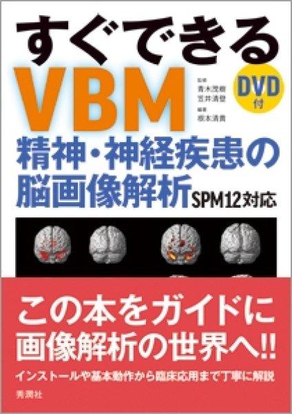 画像1: すぐできるVBM   精神・神経疾患の脳画像解析 SPM対応 (1)