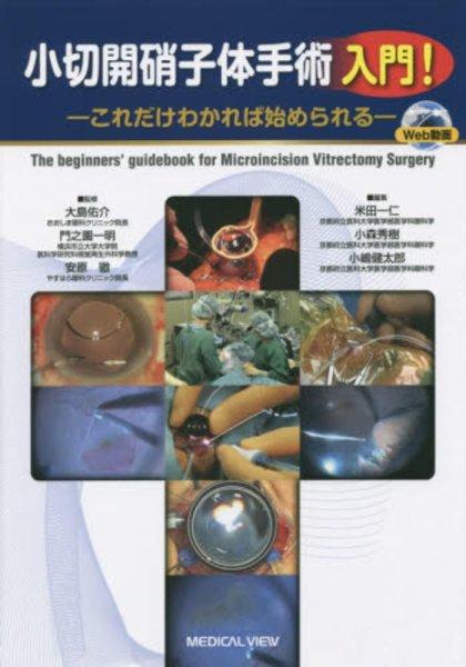 画像1: 小切開硝子体手術 入門! (1)