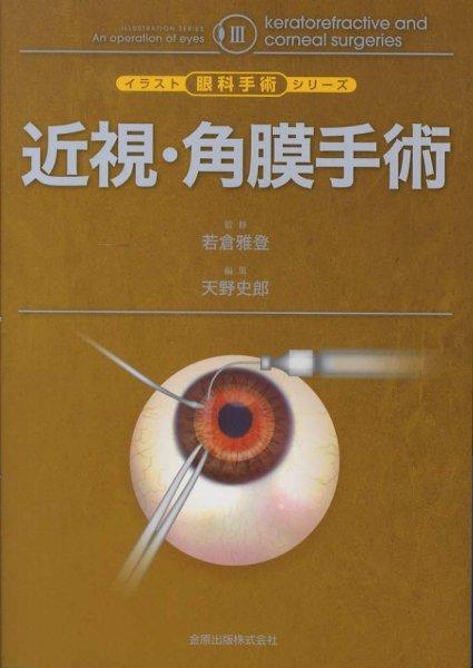 画像1: 近視・角膜手術 [イラスト眼科手術シリーズ III] (1)