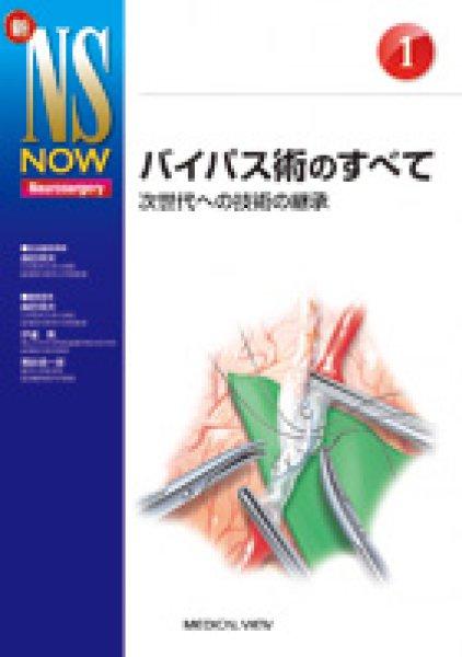 画像1: 【新NS NOW 1】バイパス術のすべて (1)