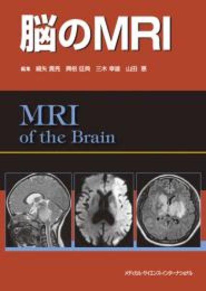 画像1: 脳のMRI (1)