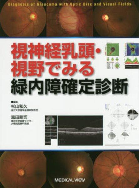 画像1: 視神経乳頭・視野でみる緑内障確定診断 (1)