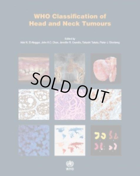 画像1: WHO Classification of Head and Neck Tumours WHO/IARC Classification of Tumours, 4th Edition, Volume 9 (1)