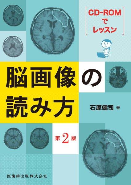 画像1: CD-ROMでレッスン 脳画像の読み方 第2版  (1)