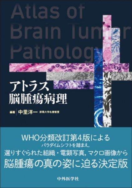 画像1: アトラス脳腫瘍病理 (1)