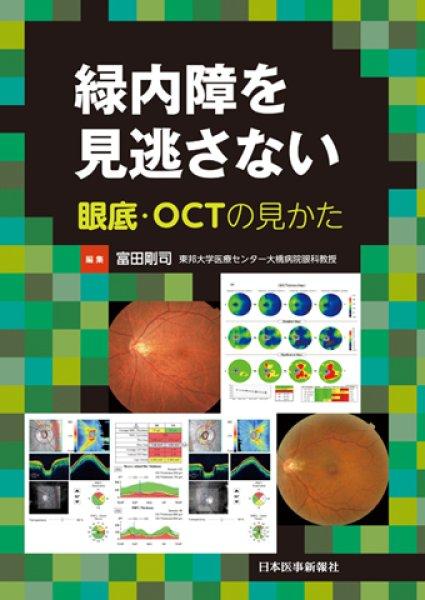 画像1: 緑内障を見逃さない 眼底・OCTの見かた (1)