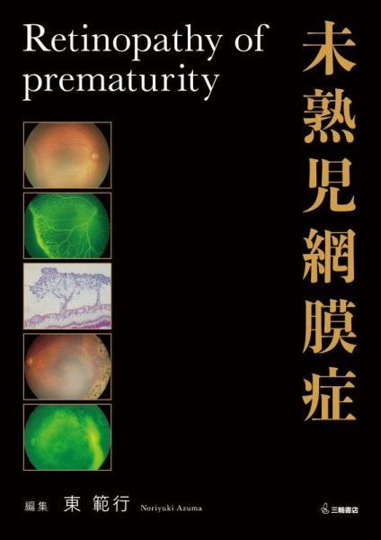 画像1: 未熟児網膜症 (1)