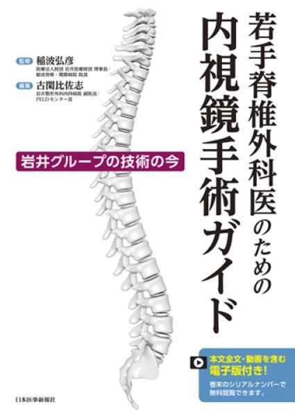 画像1: 若手脊椎外科医のための内視鏡手術ガイド (1)