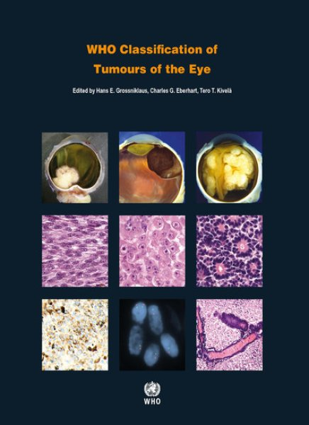 画像1: WHO Classification of Tumours of the Eye (1)