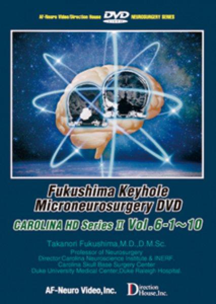 画像1: 福島孝徳:キーホール微小脳神経外科手術 DVDビデオシリーズ(英語版) Vol. 6 Carolina Series (1)