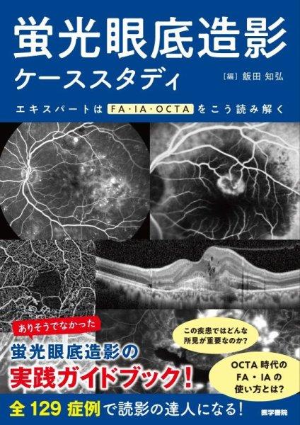 画像1: 蛍光眼底造影ケーススタディ エキスパートはFA・IA・OCTAをこう読み解く (1)