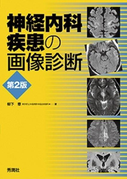 画像1: 神経内科疾患の画像診断 (第2版) (1)