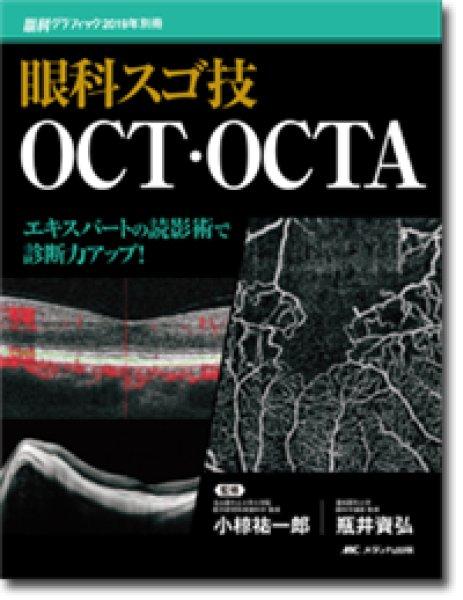 画像1: 眼科スゴ技 OCT・OCTA (1)