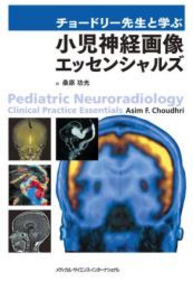 画像1: チョードリー先生と学ぶ 小児神経画像エッセンシャルズ (1)