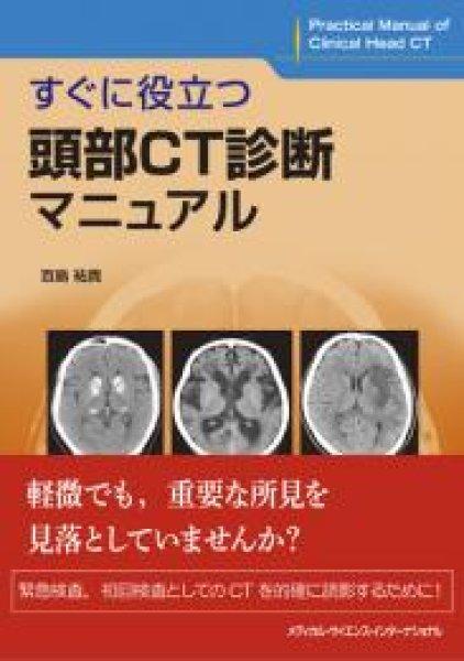 画像1: すぐに役立つ頭部CT診断マニュアル (1)