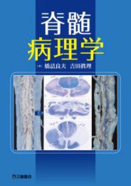 画像1: 脊髄病理学 (1)