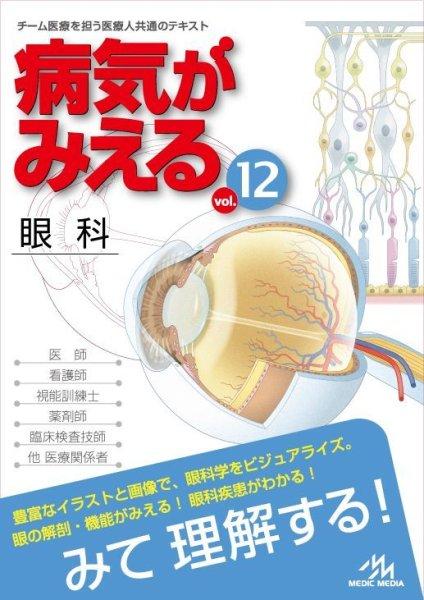 画像1: 病気がみえる vol.12 眼科 (1)