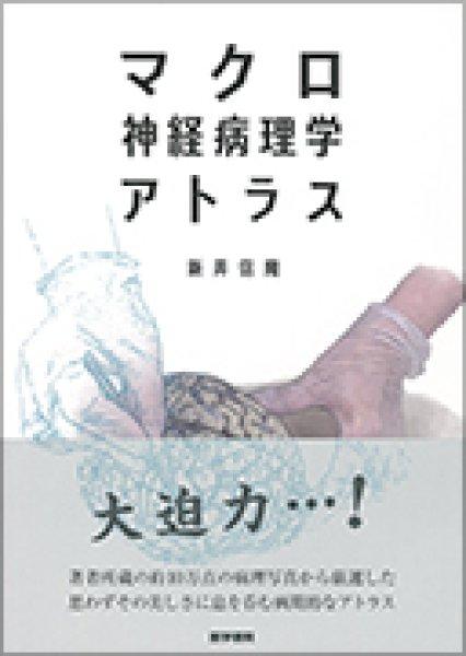 画像1: マクロ神経病理学アトラス (1)