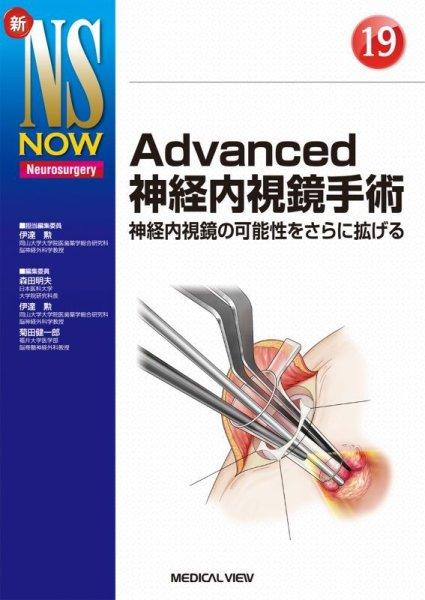 画像1: 【新NS NOW 19】 Advanced神経内視鏡手術 (1)