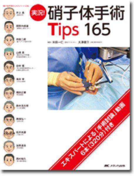 画像1: 実況! 硝子体手術Tips165  (1)