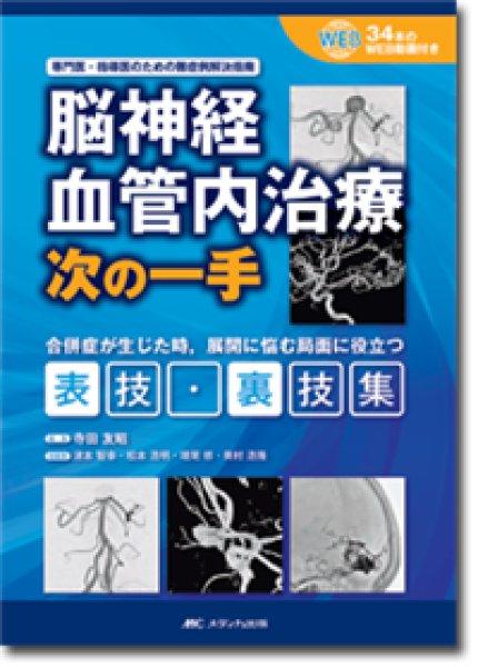 画像1: 脳神経血管内治療 次の一手  (1)