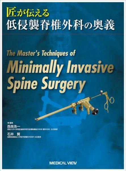 画像1: 匠が伝える低侵襲脊椎外科の奥義 (1)