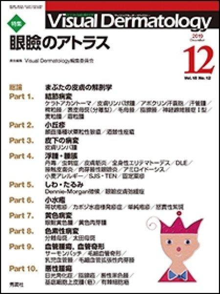 画像1: 眼瞼のアトラス(Visual Dermatology Vol.18 No.12) (1)