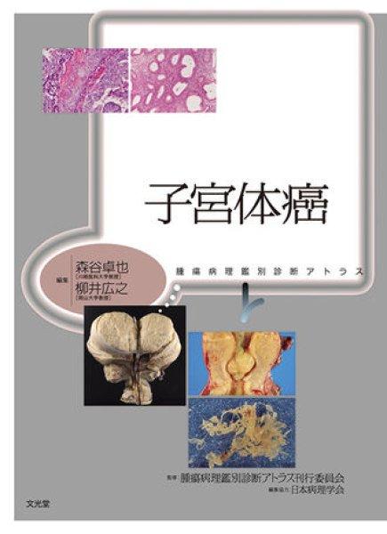 画像1: 子宮体癌 (1)