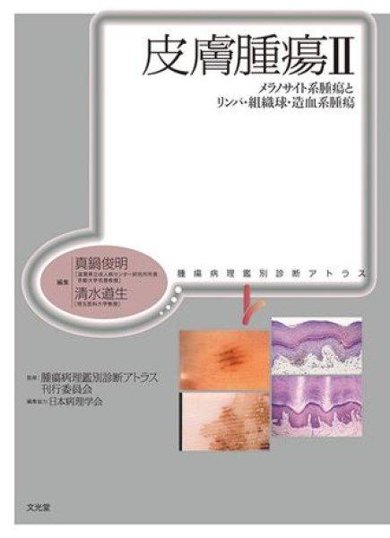 画像1: 皮膚腫瘍 II メラノサイト系腫瘍とリンパ・組織球・造血系腫瘍 (1)