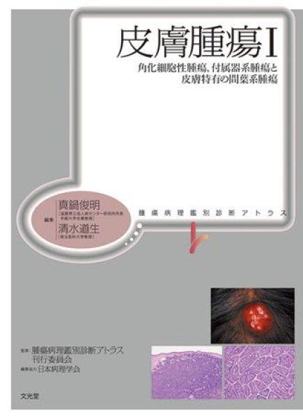 画像1: 皮膚腫瘍 I 角化細胞性腫瘍,付属器系腫瘍と皮膚特有の間葉系腫瘍 (1)