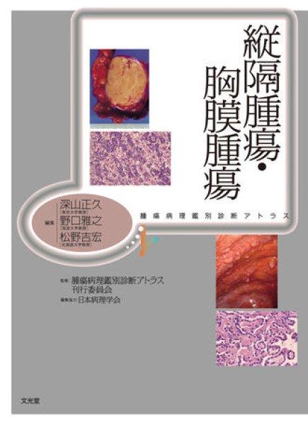 画像1: 縦隔腫瘍・胸膜腫瘍 (1)