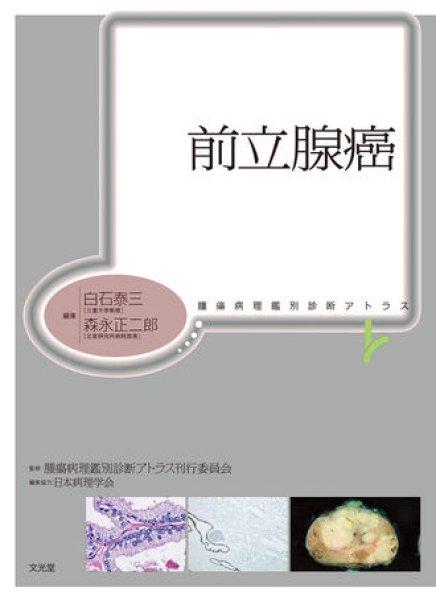 画像1: 前立腺癌 (1)