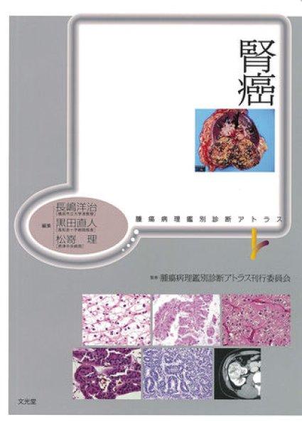 画像1: 腎癌 (1)