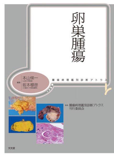 画像1: 卵巣腫瘍 (1)