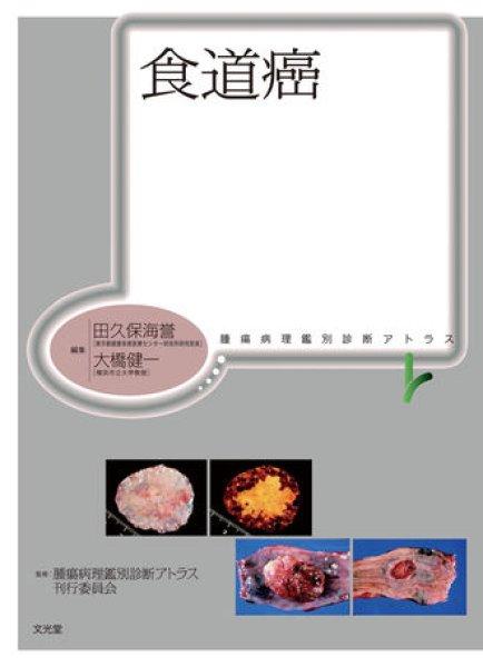 画像1: 食道癌 (1)