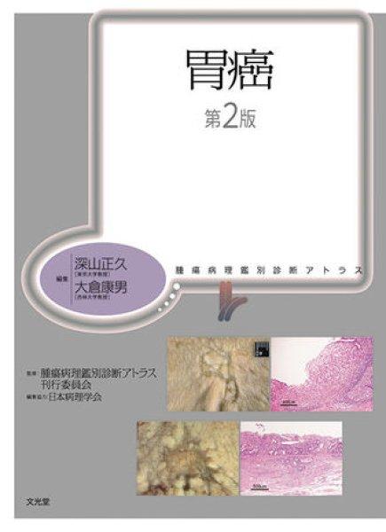 画像1: 胃癌(第2版) (1)