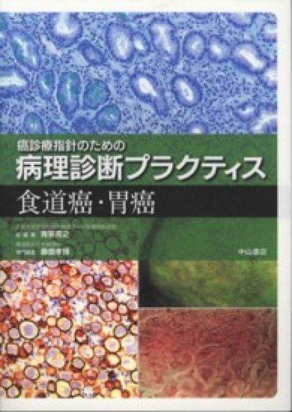 画像1: 食道癌・胃癌 (1)